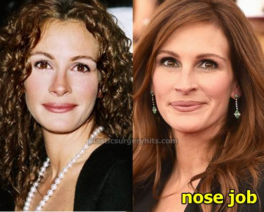 Julia Roberts Nose Job