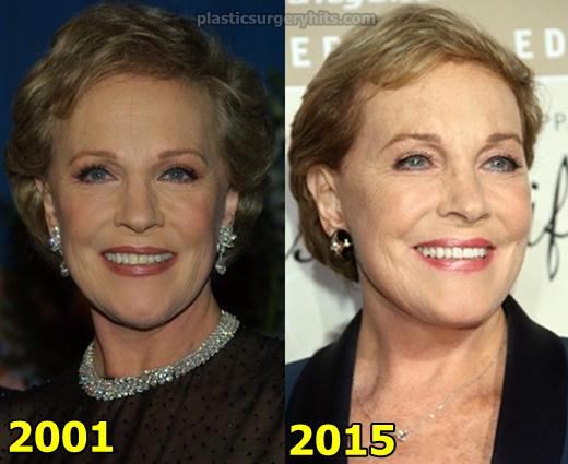 Julie Andrews Plastic Surgery