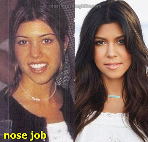 Kourtney Kardashian Nose job