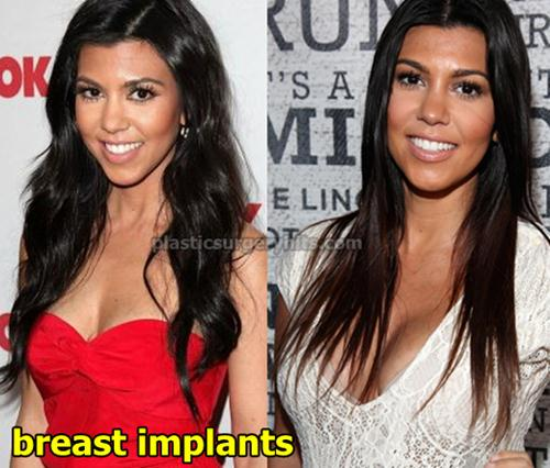 Kourtney Kardashian Plastic Surgery Breast Implants