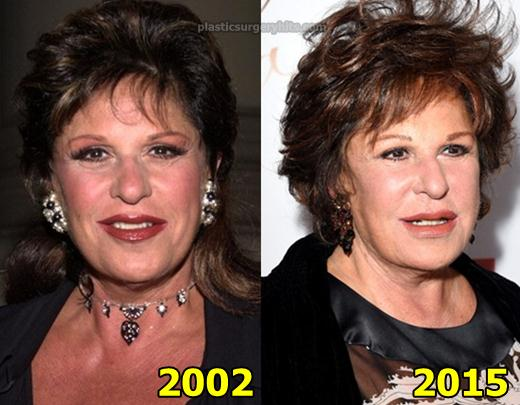 Lainie Kazan Plastic Surgery Before and After