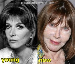 Lee Grant Facelift