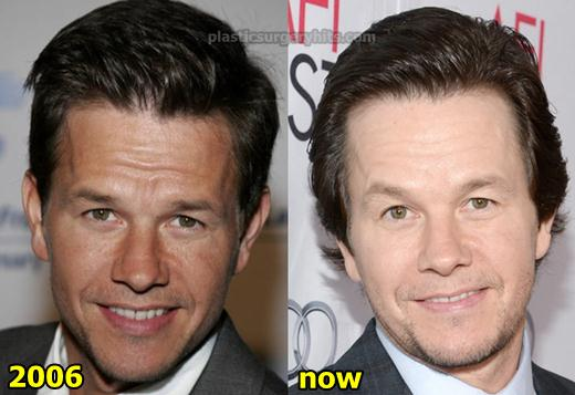 Mark Wahlberg Plastic Surgery Fact or Rumor