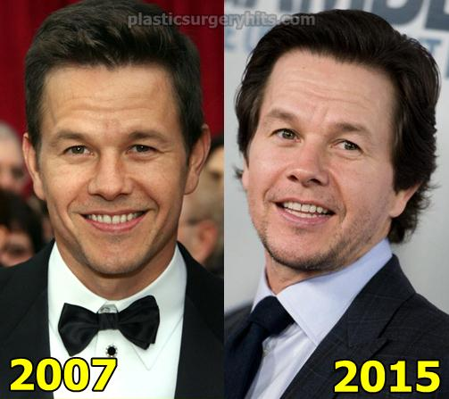 Mark Wahlberg Plastic Surgery