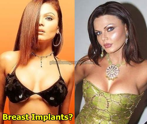 Rakhi Sawant Breast Implants