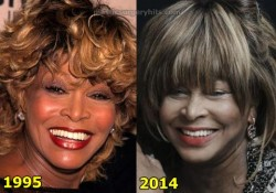 Tina Turner Plastic Surgery Before and After