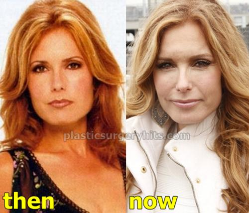 Tracey Bregman Plastic Surgery Before and After