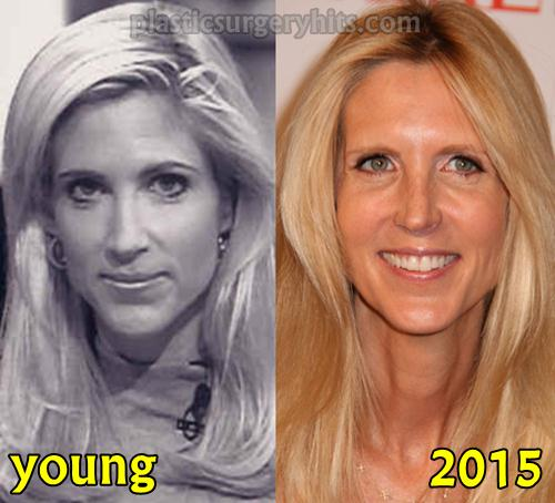 Ann Coulter Plastic Surgery Fact or Rumor