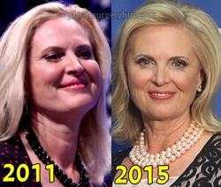 Ann Romney Plastic Surgery