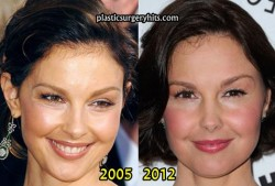 Ashley Judd Plastic Surgery Before and After
