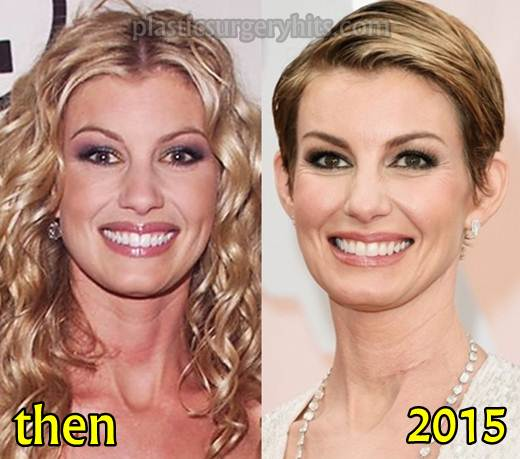 Faith Hill Plastic Surgery Before and After