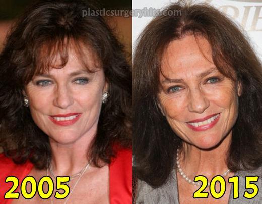 Jacqueline Bisset Plastic Surgery Fact or Rumor