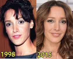 Jessica Beals Plastic Surgery Before and After