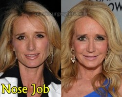 Kim Richards Nose Job