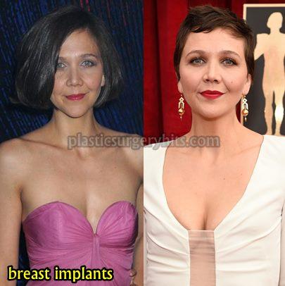 Maggie Gyllenhaal Breast Implants