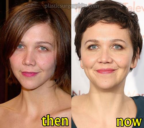 Maggie Gyllenhaal Plastic Surgery Before and After