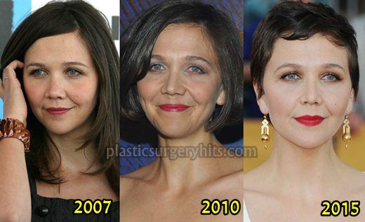 Maggie Gyllenhaal Plastic Surgery