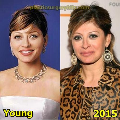 Maria Bartiromo Plastic Surgery Before and After