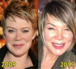 Mia Michaels Plastic Surgery
