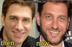 Mike Greenberg Plastic Surgery