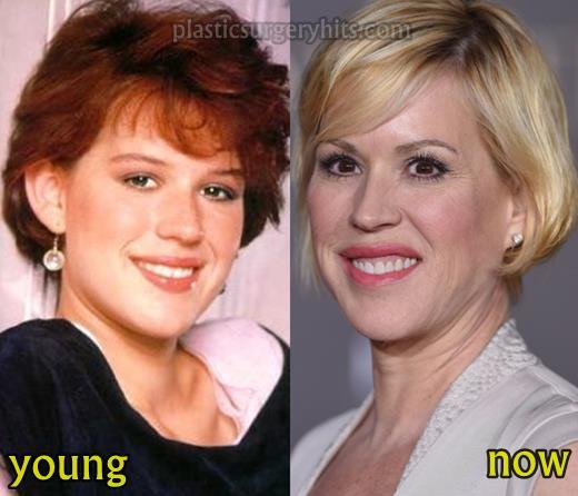 Molly Ringwald Plastic Surgery