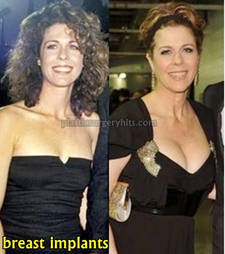 Rita Wilson Breast Implants
