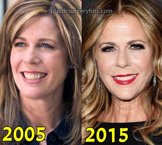 Rita Wilson Plastic Surgery Facelift