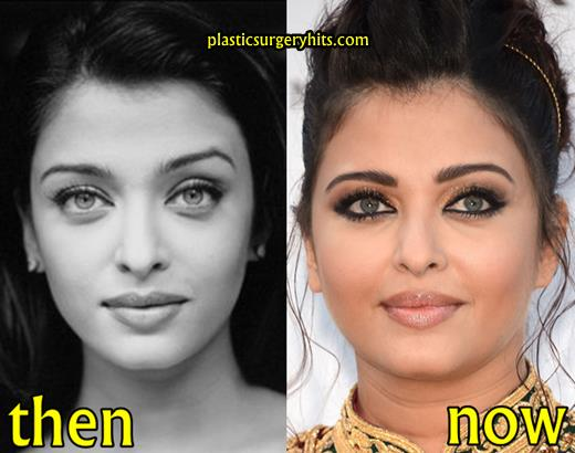Aishwarya Rai Plastic Surgery Before and After