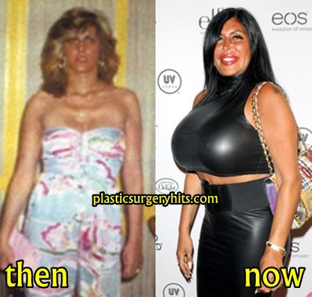 Big Ang Breast Implants