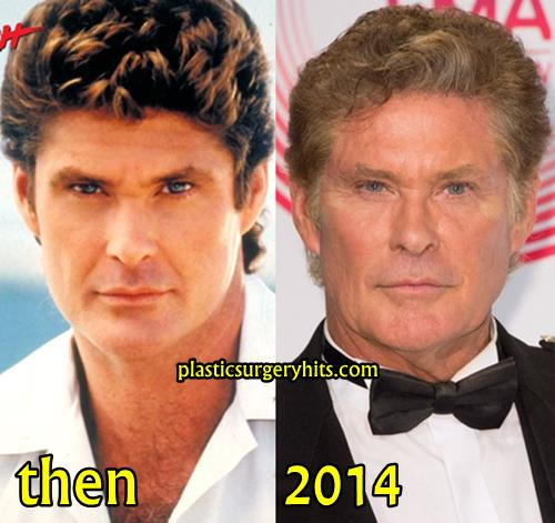 David Hasselholf Plastic Surgery Before and After
