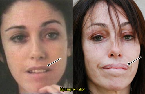 Heidi Fleiss Lips augmentation