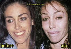 Heidi Fleiss Plastic Surgery Before and After