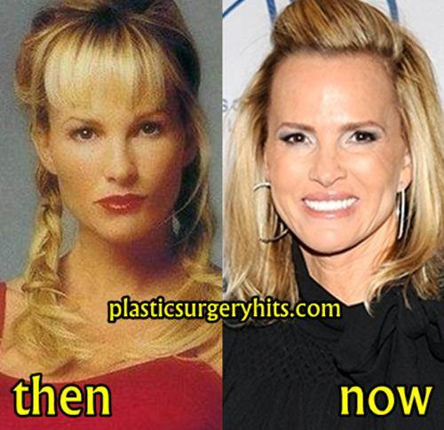 Janet Gretzky Plastic Surgery Fact or Rumor