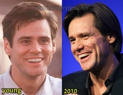 Jim Carrey Plastic Surgery Speculation