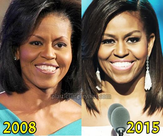 Michelle Obama Plastic Surgery Before and After