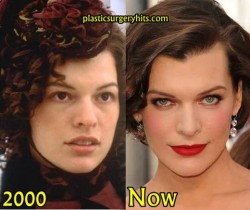 Milla Jovovich Plastic Surgery Fact or Rumor