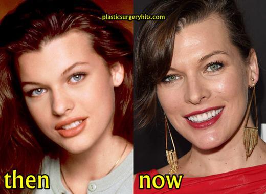 Milla Jovovich Teeth Surgery