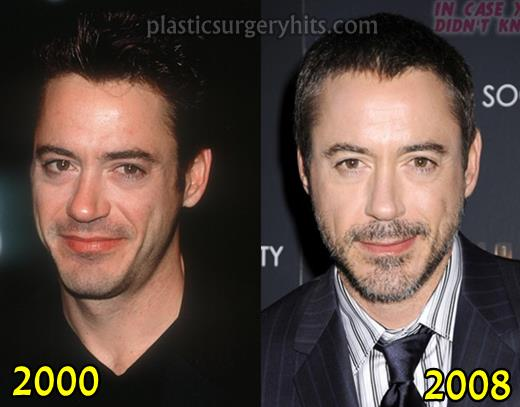 Robert Downey Jr Plastic Surgery News 2008