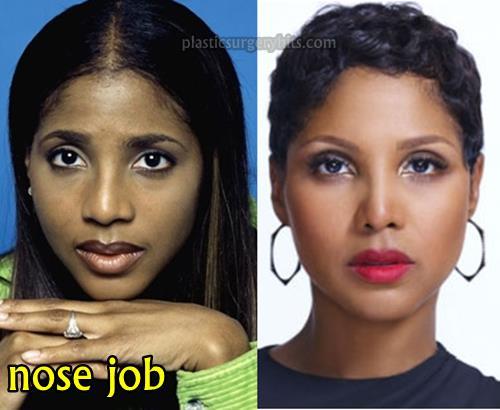 Toni Braxton Plastic Surgery Through Nose job