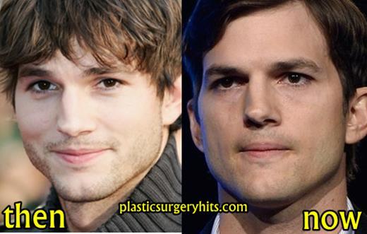 Ashton Kutcher Plastic Surgery