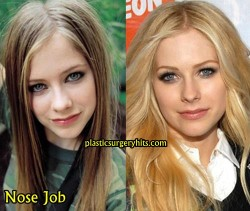 Avril Lavigne plastic Surgery through Nose Job