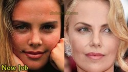 Charlize Theron Nose Job