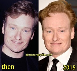 Conan O'Brien Plastic Surgery Before and After