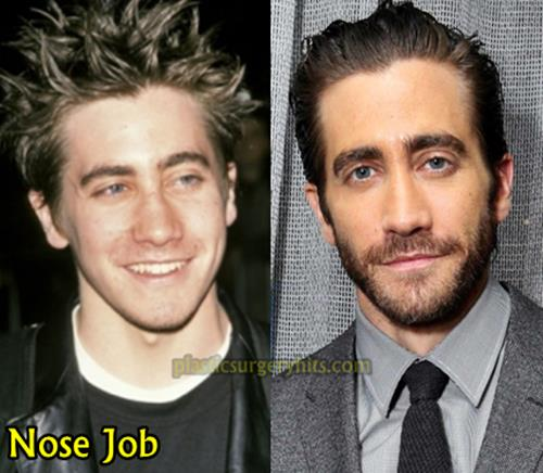 Jake Gyllenhaal Plastic Surgery Through Nose job