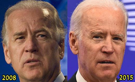 Joe Biden Plastic Surgery Fact or Rumor