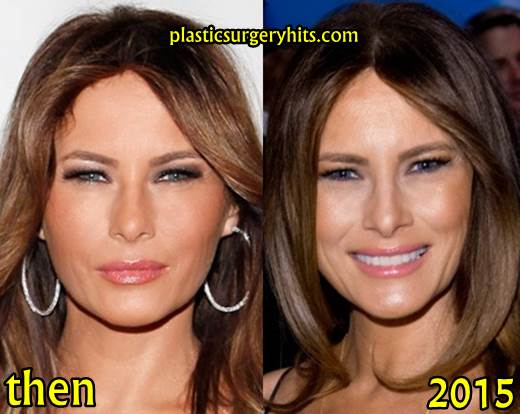 melania trump plastic surgery before and after plastic