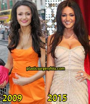 Michelle Keegan Breast implants rumor