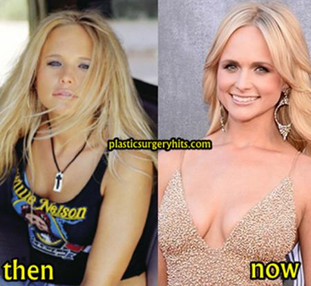 Miranda Lambert Plastic Surgery Through Breast Implants