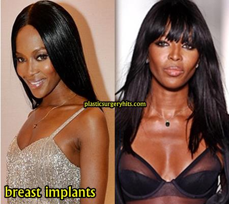 Naomi Campbell Breast Implants