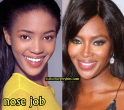Naomi Campbell Nose Job